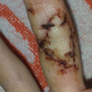 cicatriz-injerto-antes-salud-y-laser