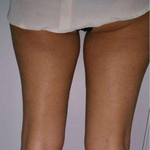 eliminar-grasa-piernas1-despues-salud-y-laser